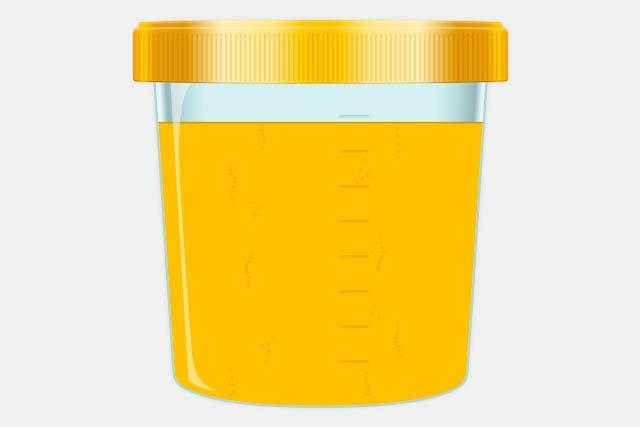 """Urina colhida que pode ser considerada """"anormal"""" no decorrer do dia"""