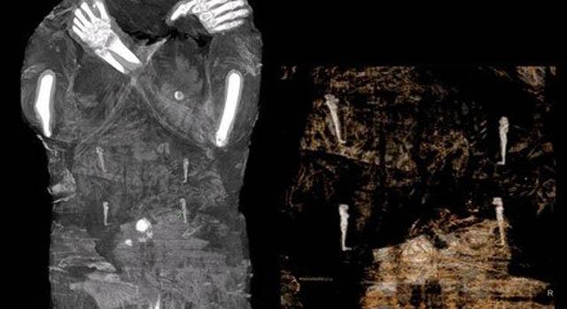 Raio-X revelou um feto no ventre da múmia (Projeto Múmia de Varsóvia / Divulgação via AFP)